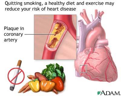 pola hidup sehat makanan sehat buat jantung