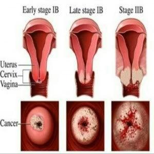 Kanker mulut rahim