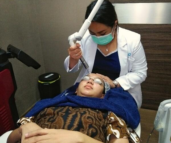 Laser wajah sebagai cara menghilangkan bekas jerawat