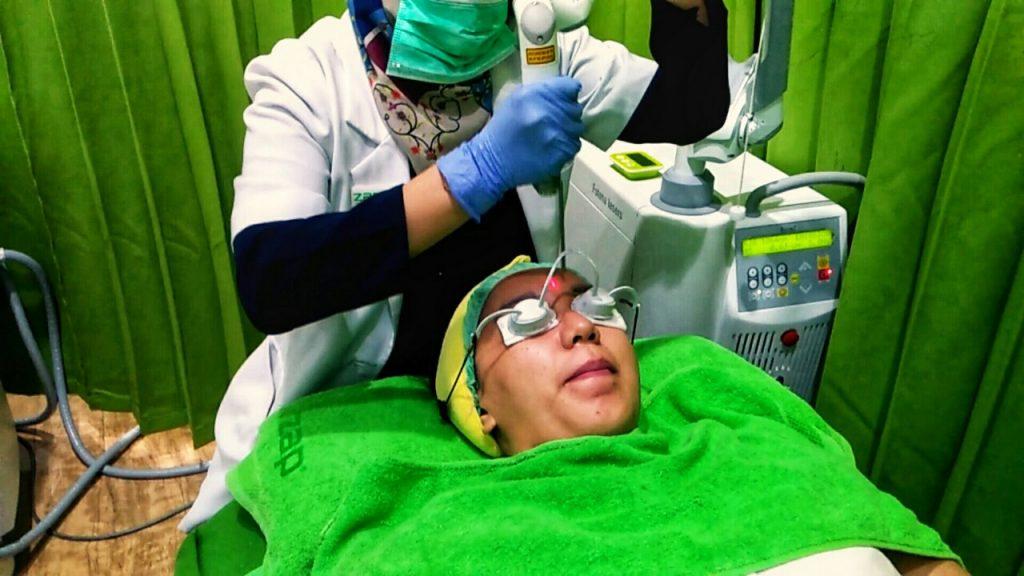 Laser toning ini juga merangsang kolagen, menyebabkan kolagen bangkit untuk menimbulkan regenerasi kulit baru, sehingga kulit akan kelihatan lebih muda. Pantes lah kalau laser toning ini dibilang bisa menghaluskan wajah. Bagus untuk orang-orang yang merasa kulit wajahnya banyak kerutan.