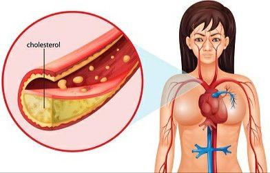 Ketika Tanda Kolesterol Tinggi Tidak Turun-turun