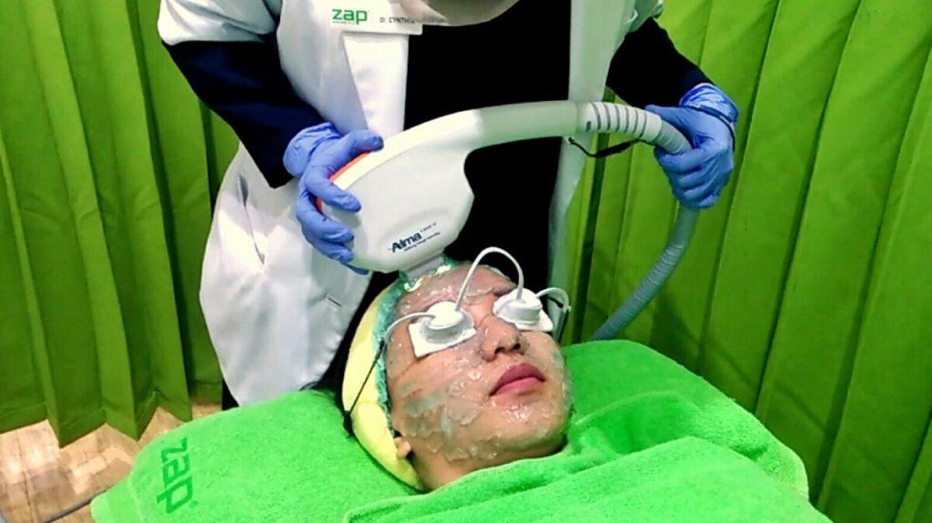 perawatan wajah di Zap Clniic Surabaya