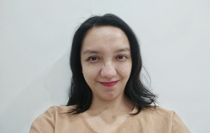 Vicky Laurentina X Klinik Aishaderm Sidoarjo
